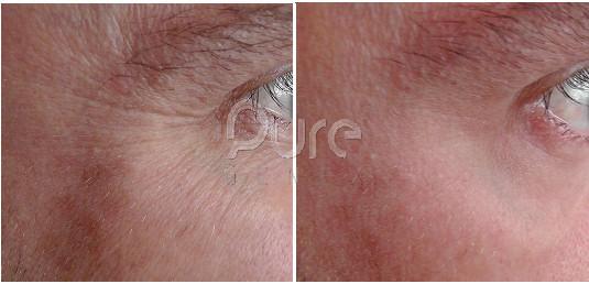 RF Skin Tightening